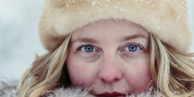 Winter Skin - Looking after your skin during the winter months!